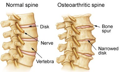 degenerative joint disease & osteoarthritis - harmony chiropractic, Skeleton