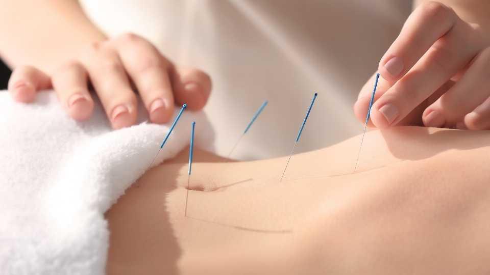 Woman Acupuncture Kelowna
