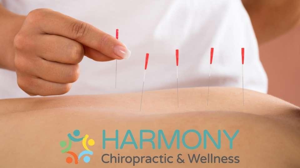 Acupuncture Kelowna