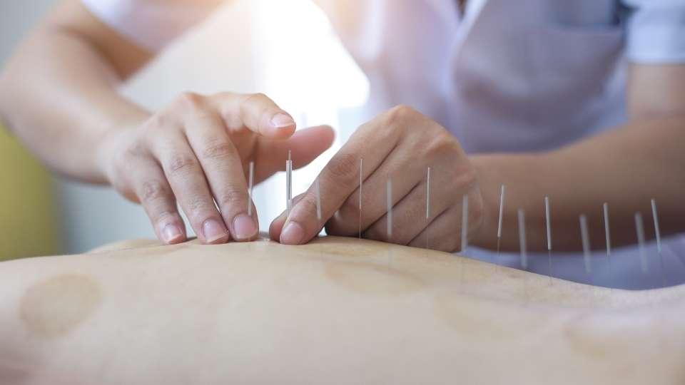 Kelowna Acupuncture